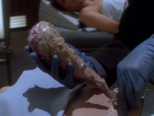 Dr. Bashir entnimmt Jadzias Symbionten Dax.