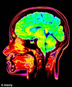 Psycopaths-brain