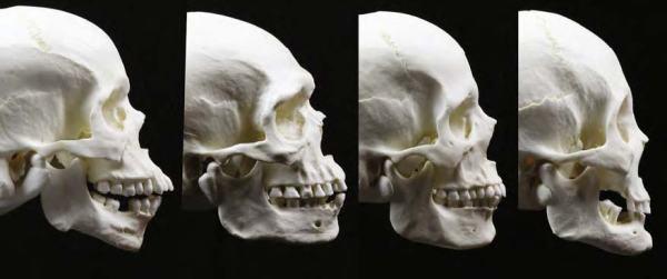 09-skull7