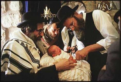 Jüdische Beschneidung